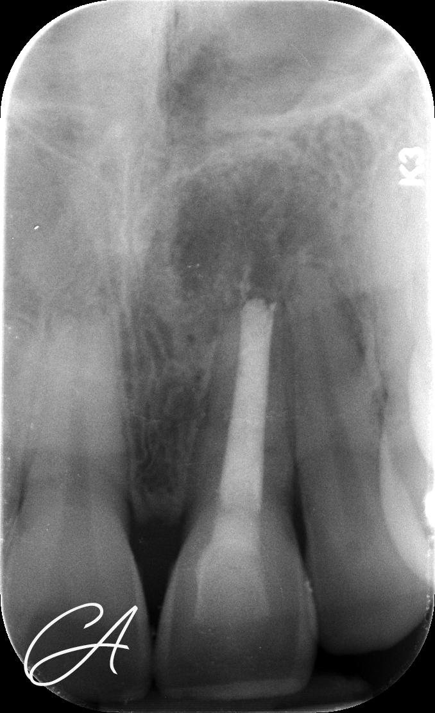 Radiografia 27 mesi