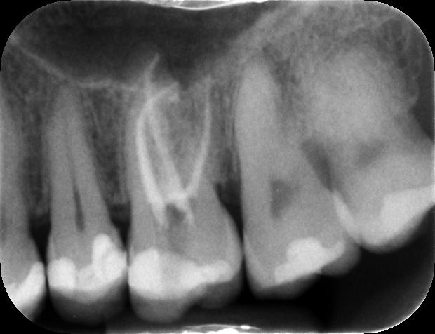 Radiografia finale