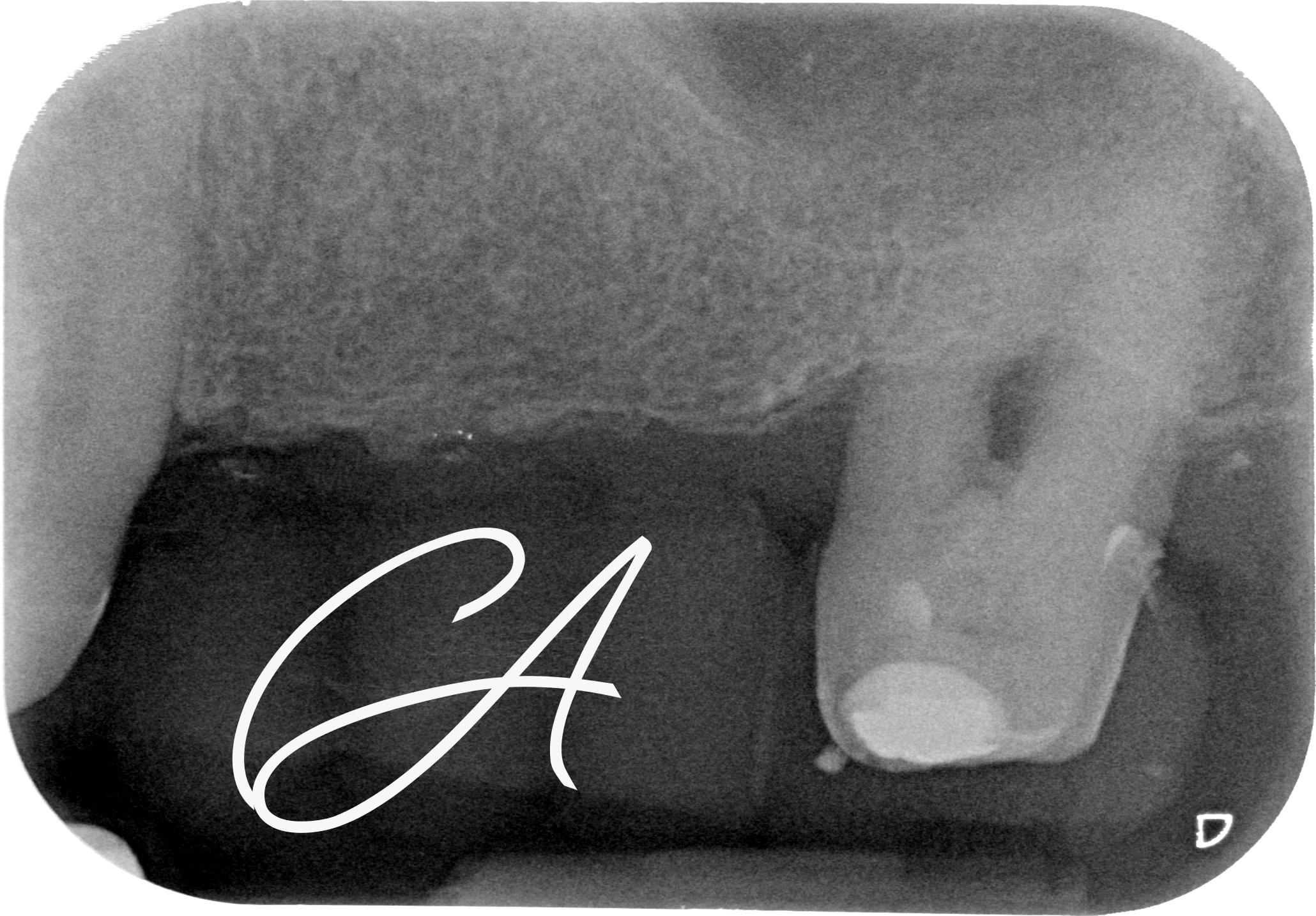 Radiografia Iniziale 26