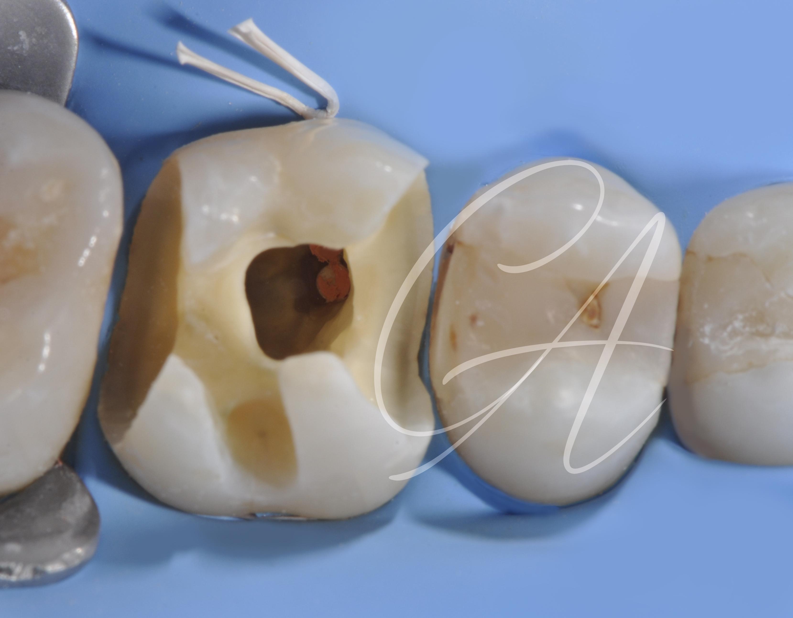 Post-terapia endodontica