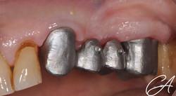 Particolare dell'integrazione tra metallo e tessuti gengivali