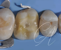 Restauro post-endodontico