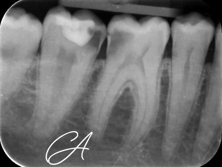 Anatomia dentale atipica!
