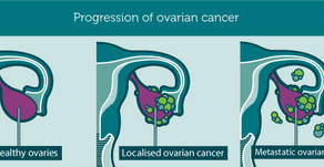 รักษามะเร็งรังไข่  ด้วยสาร CBD และ CBG