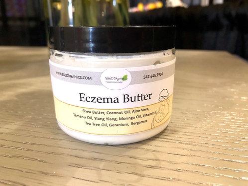 Eczema Butter (6oz)