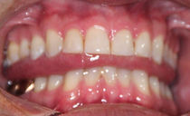 swallowing%208-25-19_edited.jpg
