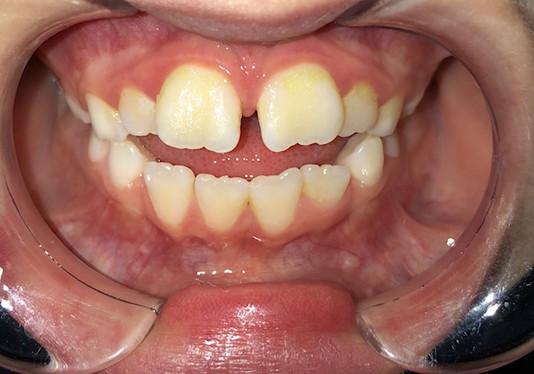 Anterior Open Bite With Tongue Thrust