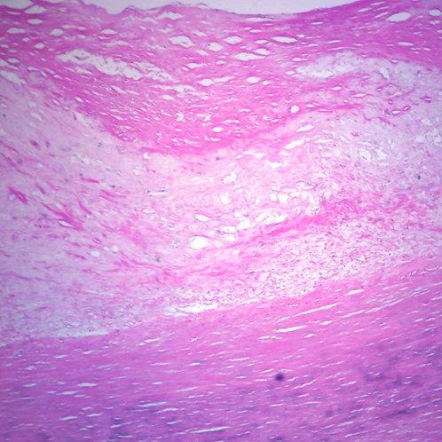 Human Atherosclerosis - Aorta, sec. 7 µm H&E Microscope Slide