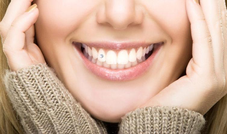 tooth3.jpg