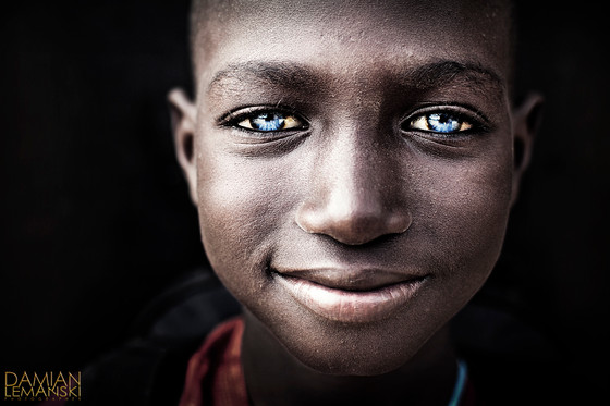Boy with the blue eyes.