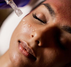 microneedling-with-edermastamp.jpg