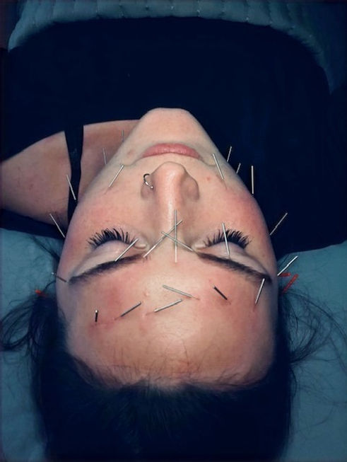 facial-acupuncture-treatment-at-pur-glo.