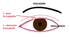 chalazion.png
