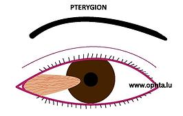 ptérygion.png