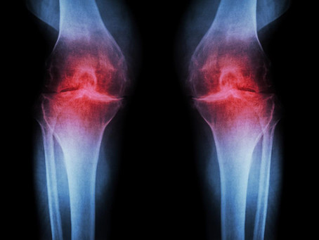 Five fantastic reasons to get exercising if you have Osteoarthritis!
