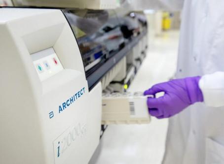 Dona FECHAC equipo para medir 'inmunidad de rebaño'