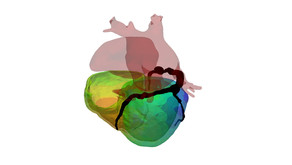 €1,9m ERC grant awarded for virtual heart models research