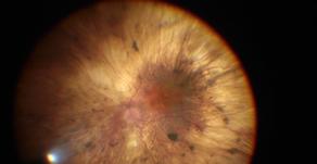 New algorithm makes retinal surgery safer