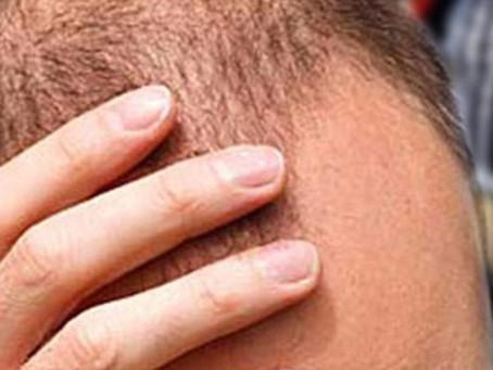 Calvizie, Alopecia: un innovativo trattamento con tessuto autologo destrutturato