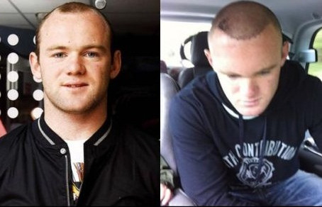 Rooney: dopo il trapianto si è affidato al PRP
