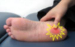 足底筋膜炎(足跟炎)