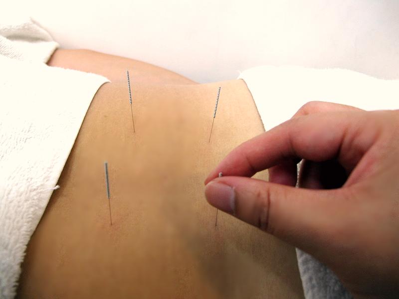 針灸Acupuncture