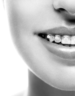 Braces Teeth Mouth Orthodontics Woman. Black And White.