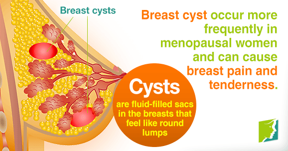 Breast Cysts And Ovaries Natural Treatment