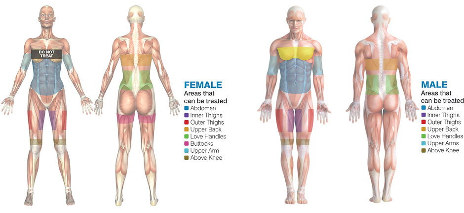 isoLipoONE_Treatments_V1.1.0 female.jpg