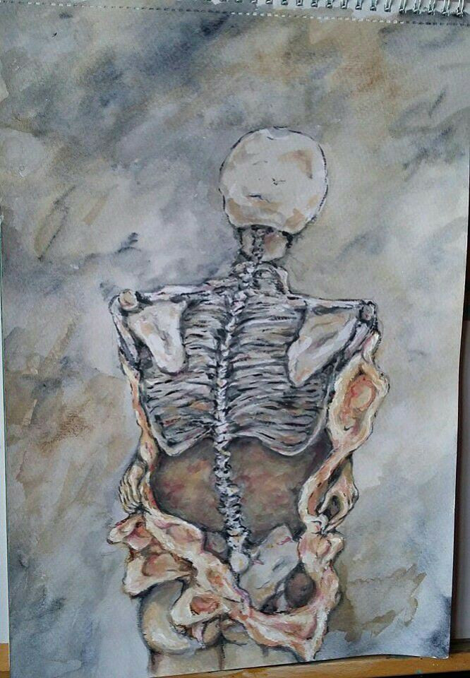 Back of a skeletal body suffering from bulimia, with exposed ribs and spine