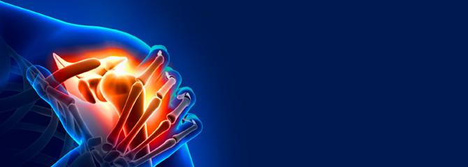 Das Impingement-Syndrom- wenn die Schulter schmerzt