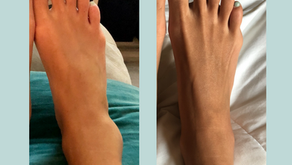 Got a sprain? Speed up recovery with acupuncture