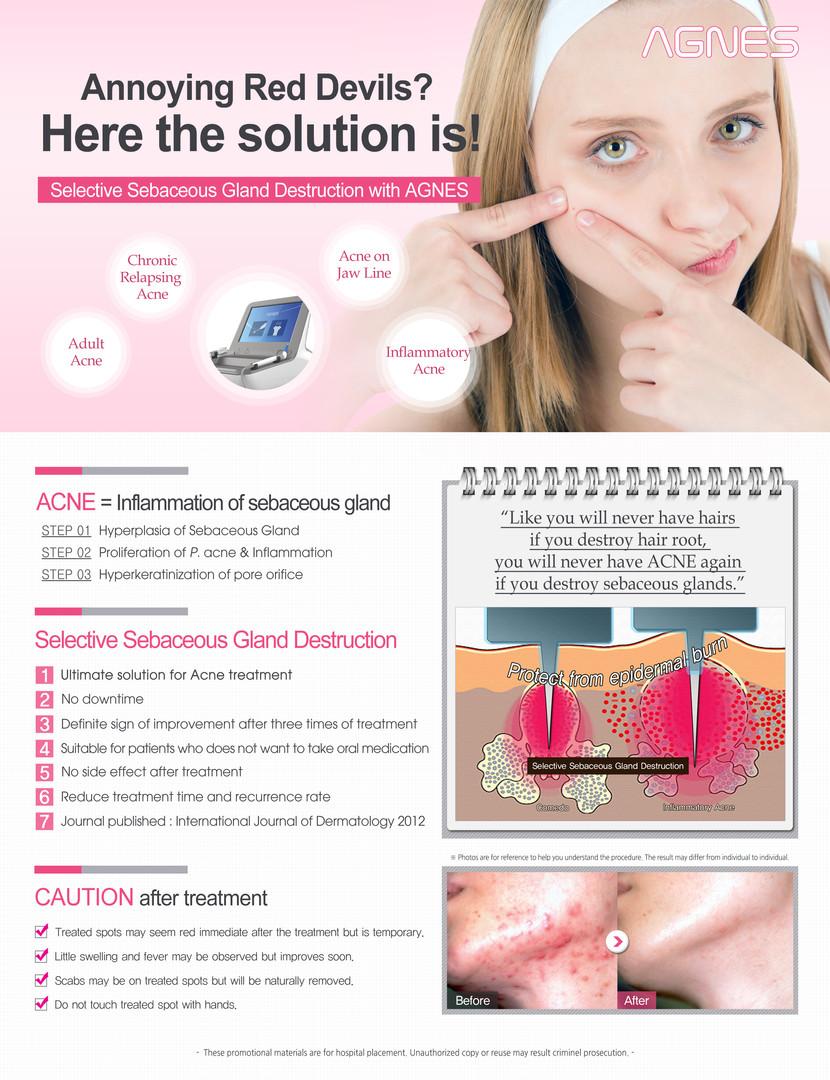AGNES_acne (1).jpg