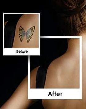 tattoo_remover.jpg