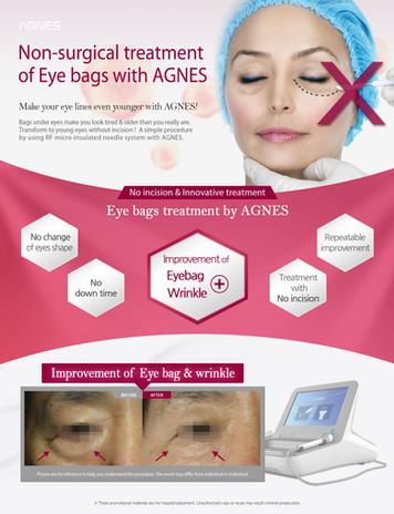 AGNES_eyebag (1).jpg