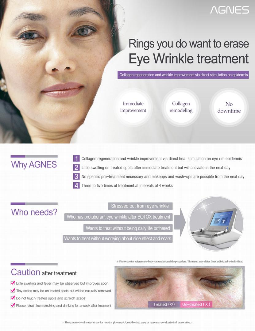 AGNES_wrinkle (1).jpg
