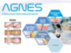 AGNES-Acne-Photo-1024x773.png