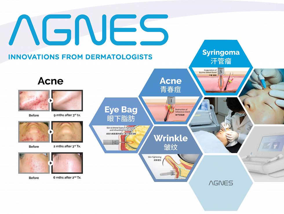 AGNES-Acne-Photo-1024x773.png