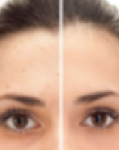 laser-pigmentation.jpg