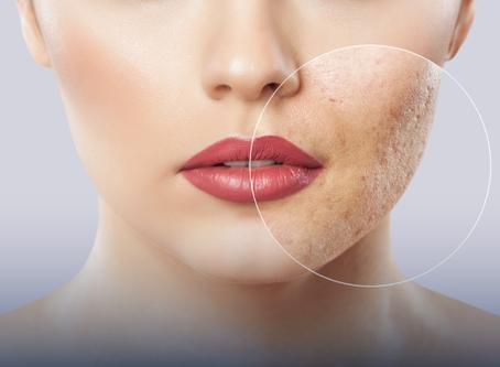 Os melhores tratamentos para as cicatrizes da acne