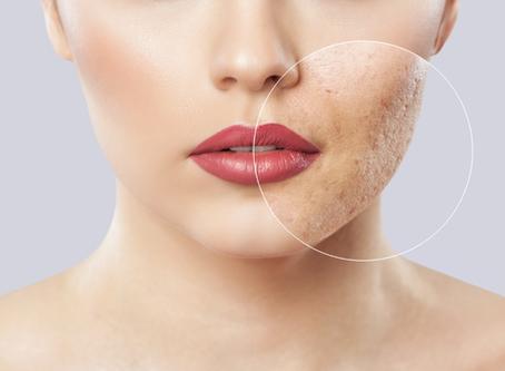 Melhores tratamentos para cicatrizes de acne