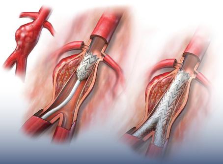Saiba mais sobre o aneurisma
