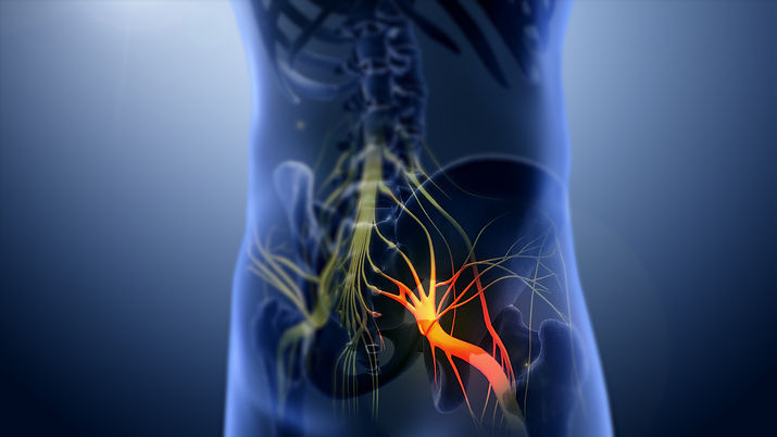 3D_still_showing_Sciatica_nerve.jpg