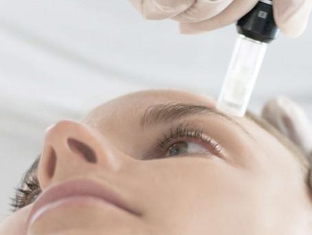What is Skin Needling?