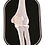 Thumbnail: X-Ray Elbow (right)