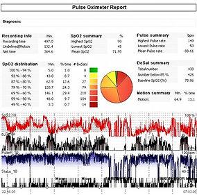 Результаты пульсоксиметрии