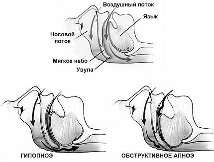 Механизм апноэ