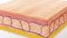 Radiofrequência Pulsada com Multiagulhas (RFPM®) no Tratamento de Estrias Antigas