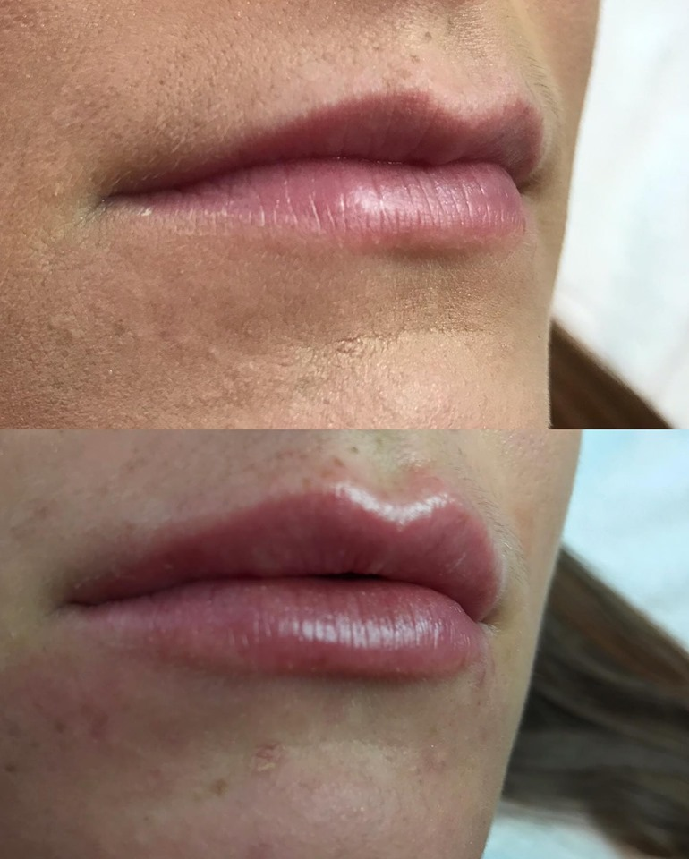 0.7ML Revolax Lip Fillers