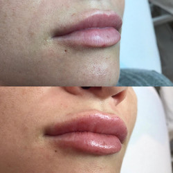1ml Revolax Lip fillers